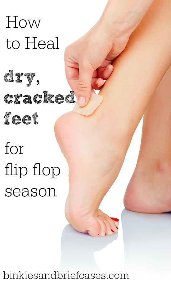 tips for how to heal dry and cracked feet