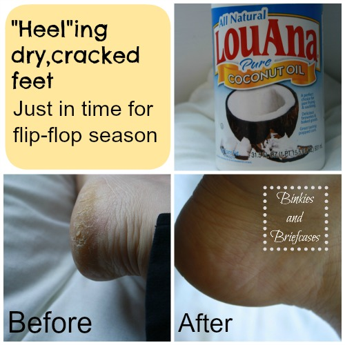 How to heal dry, cracked feet